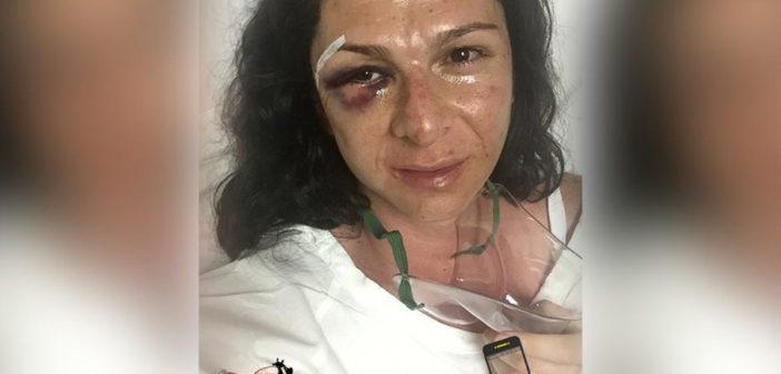 """Ana Guevara pestata a sangue in strada da 4 uomini: """"La moto non è per le donne"""""""